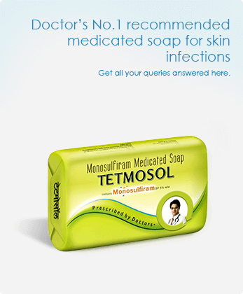Tetmosol Medicated Soap for Scabies